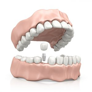Your dentist for dental implants in Ocala, FL.