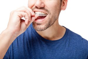How do I clean my Invisalign in Ocala, FL?