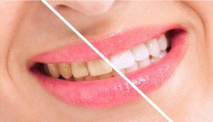 white yellow teeth stains